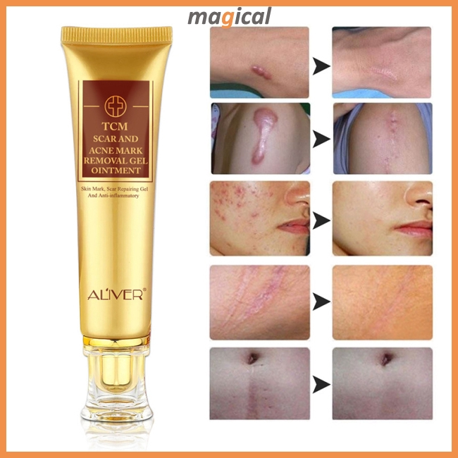 30ml Acne Treatment Cream Scar Removal Acne Scar Cream Ointment