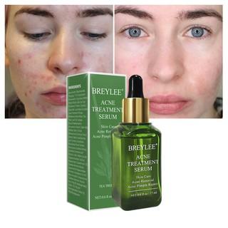MRM, MSM Cream 113g - For Acne Scars/Eczema/Problem Skin | Shopee