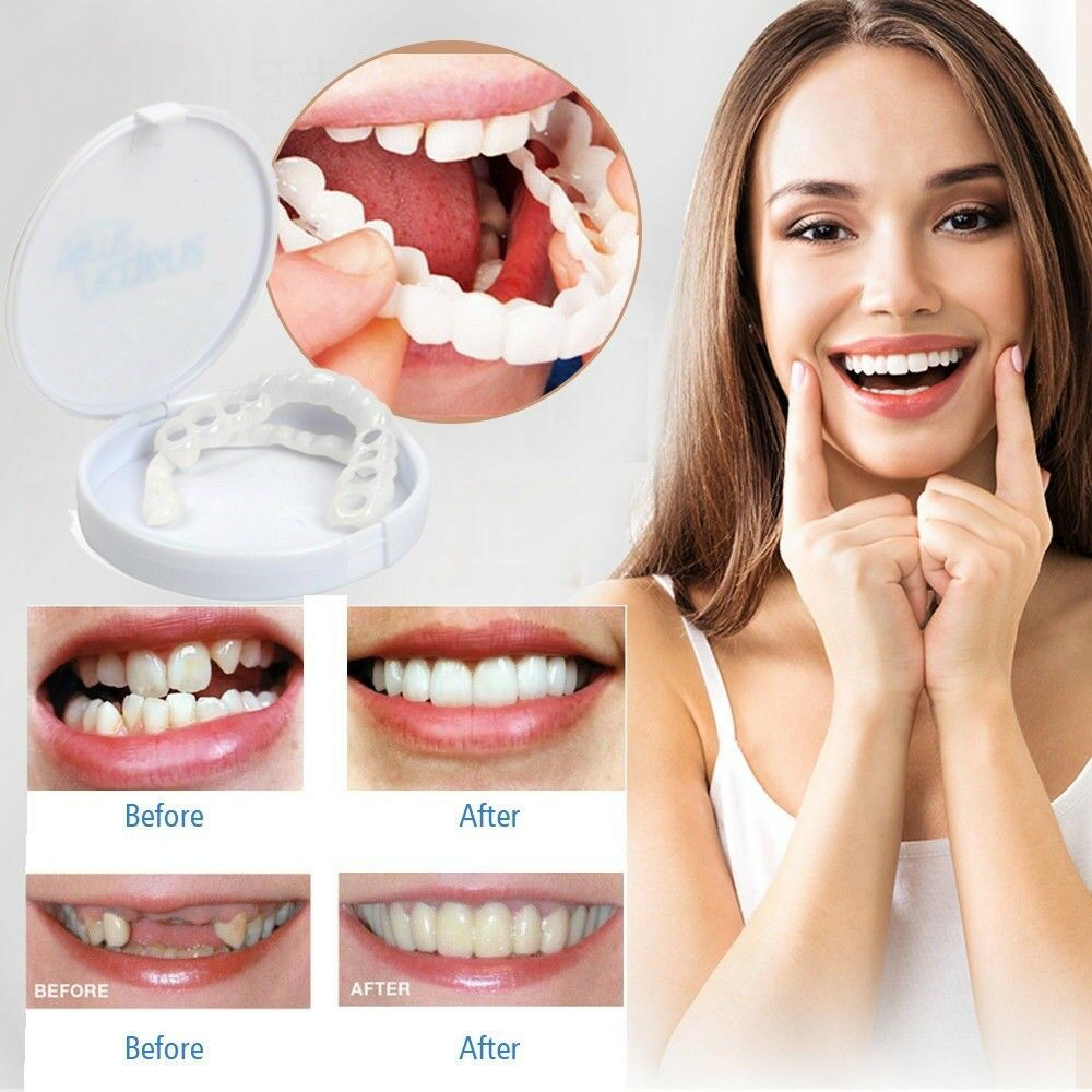 Tooth Instant Perfect Smile Flex Teeth Whitening Smile False Teeth Cover DY