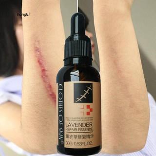 【HKM1】Lavender Scar Repair Essence Acne Burn Stretch Marks Removal Skin  Treatment