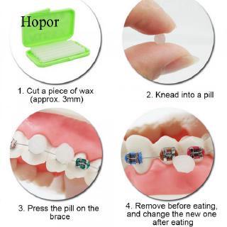 Hopor 5 Boxes Fruit Scent Flavoured Relief Dental Oral ...