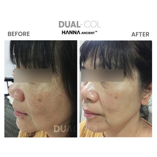 [Free Shipping] Dual Col Double Collagen Supplement   Dual