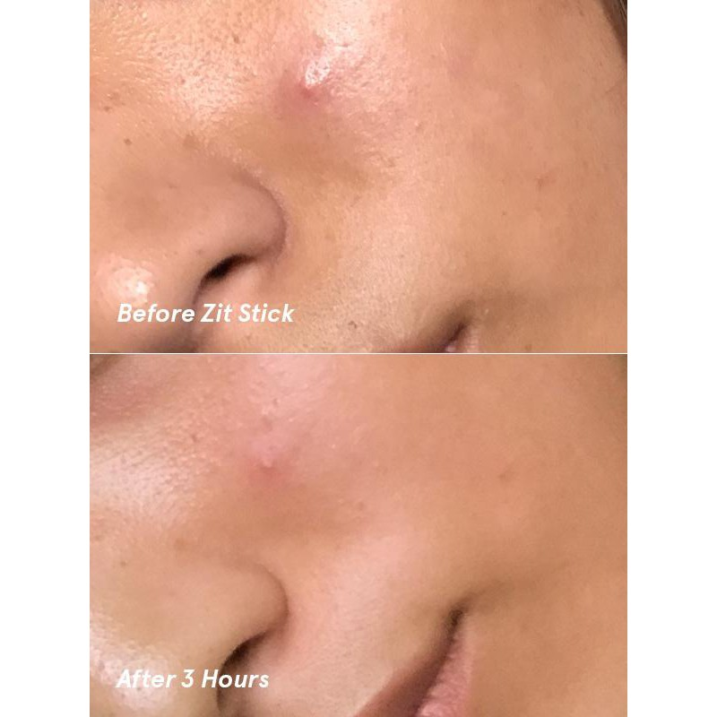 Zit Stick by Glossier #12