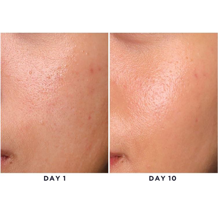 By Wishtrend] Mandelic Acid 5% Skin Prep Water 120ml, toner, essence,  aha,bha | Shopee Singapore