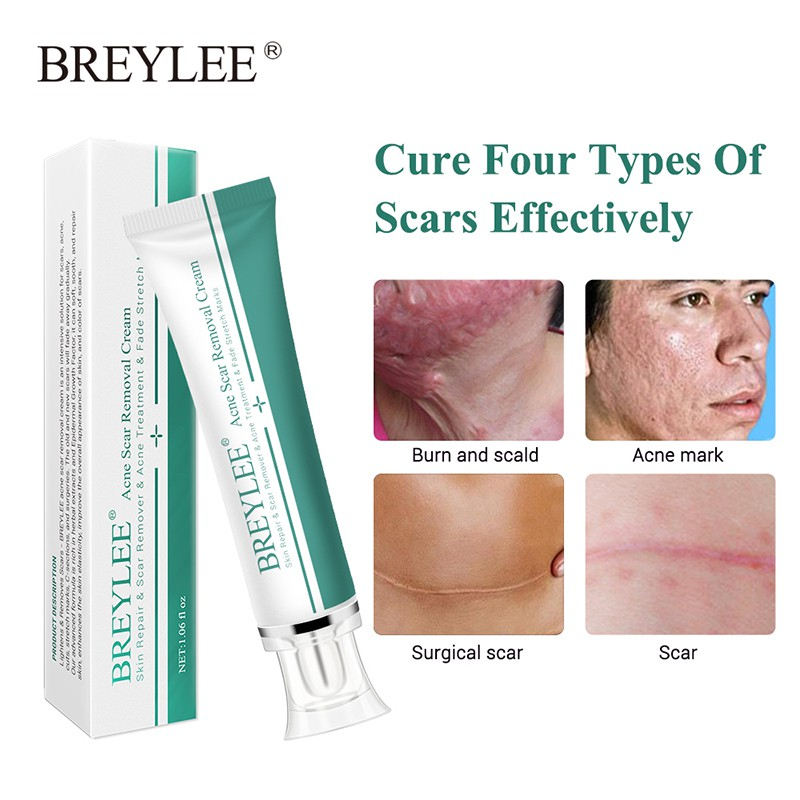 Breylee Acne Scar Removal Cream 30g Face Cream Skin Repair