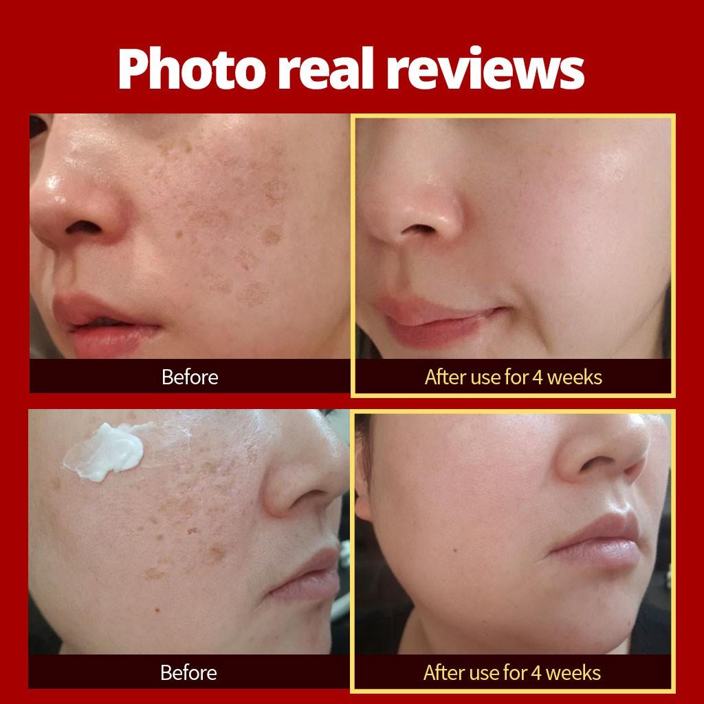 W.SKIN LAB OFFICIAL】 A.M (Anti-Melasma) Cream 50ml / korean / beauty / skin  / whitening / gift / cream / serum / scar / pigmentation / melasma /  moisturizer / clinical trial / no paraben | Shopee Singapore